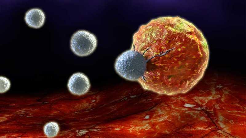 Investigan maneras de 'encender' nuestras células asesinas naturales contra el cáncer