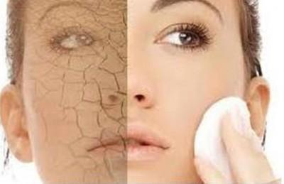 إذا تعرض الجسم للجفاف، وفقد أكثر من عشرين بالمئة من السوائل الموجودة فيه، فإنه يموت