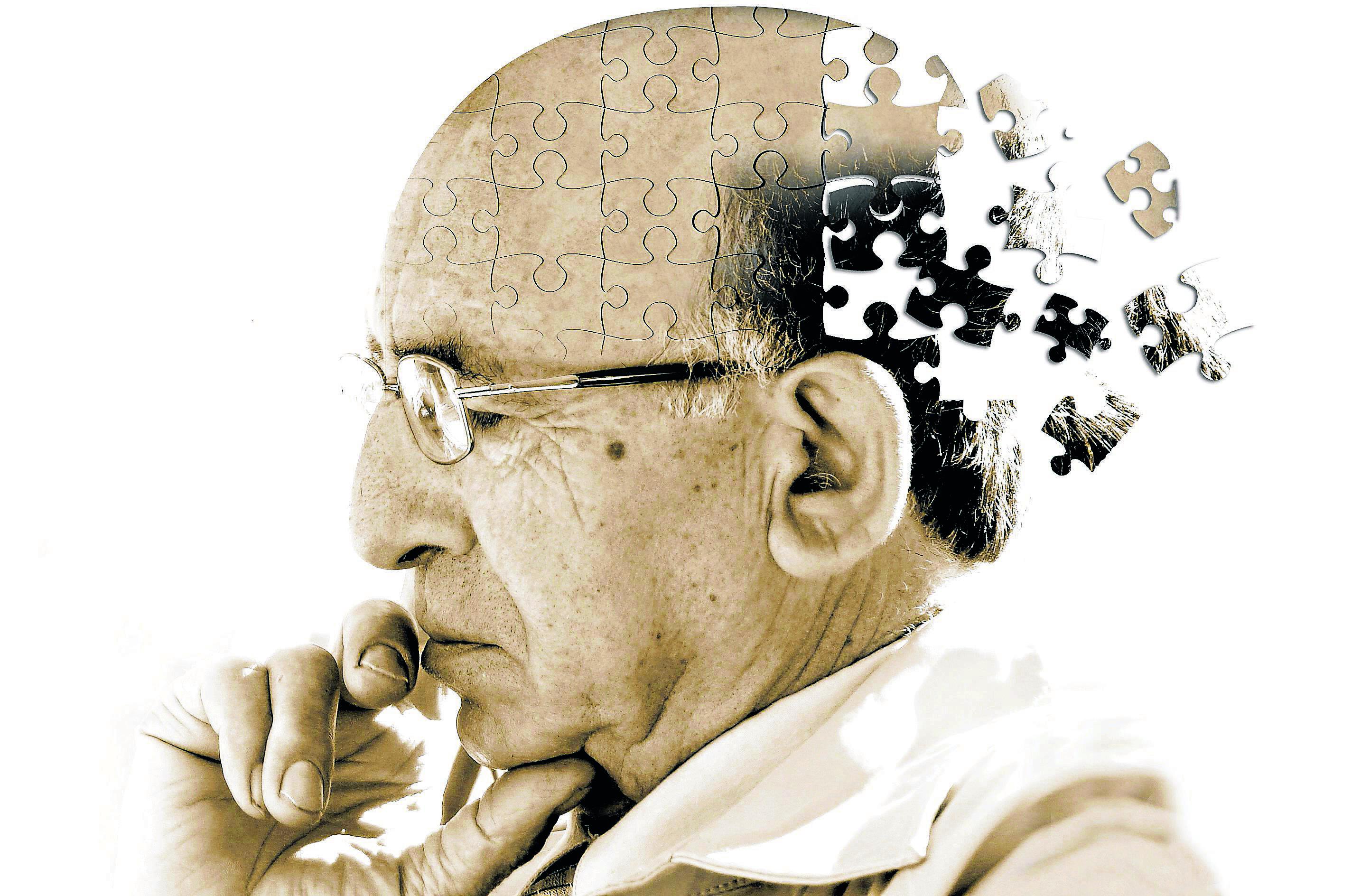 Investigadores españoles descubren variante genética que protege contra el Alzheimer y varias demencias
