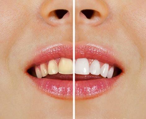 Recetas naturales que dejarán tus dientes como nuevos!