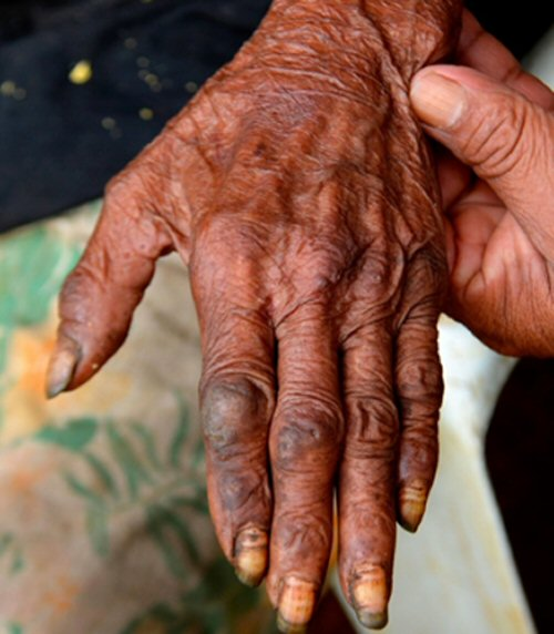 Así es la tungiasis: cuando las pulgas de la arena penetran en la piel