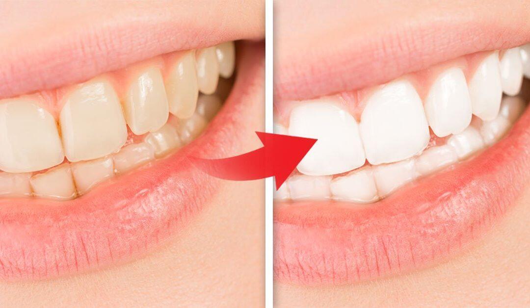 ingredientes naturales que blanquearán tus dientes !!