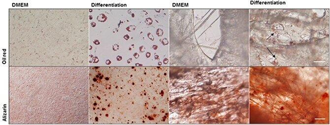 Células madre ayudan a recuperar un área dañada por accidente cerebrovascular