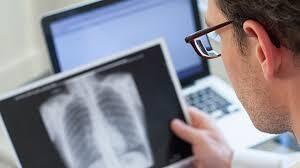 En el Día Mundial de la Tuberculosis ¿Qué es  y cómo se transmite?
