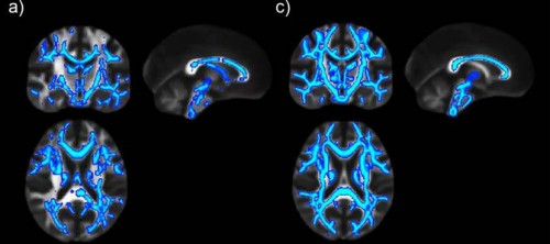 Diseñan sustancias capaces de aumentar la memoria en el cerebro