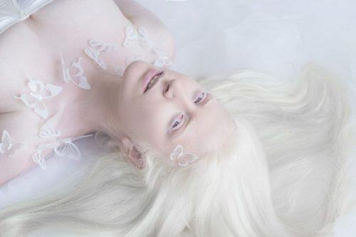 En el Día internacional sobre el albinismo, no es una enfermidad, que es?