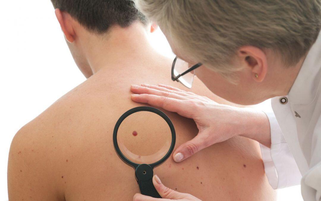 Últimos avances en el tratamiento del cáncer de piel