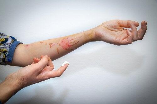 Remedios que ayudan a calmar el ardor de las quemaduras
