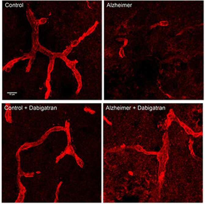 Un anticoagulante oral retrasa la aparición del alzhéimer en ratones