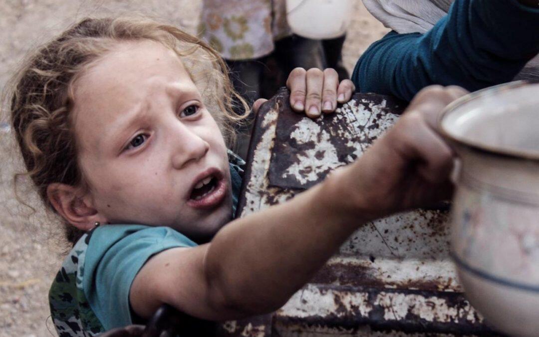 اليونيسيف: طفل واحد من بين كل ثلاثة لا ينمو جيداً بسبب سوء التغذية