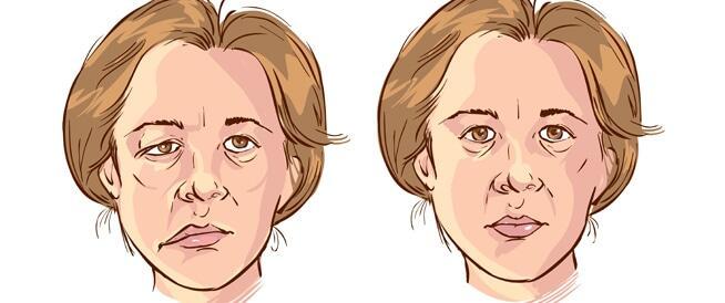 إحرص على تغطية الوجه عند خروجك من مكان دافىء الى مكان بارد وذلك لتجنب شلل العصب السابع
