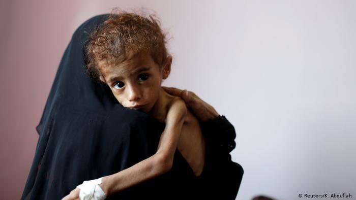 بين الحرب وكورونا..  خطر المجاعة يهدد 2٫4 مليون طفل في اليمن