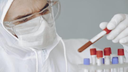 أطباء يحذرون من حالة شائعة قد تزيد احتمال الوفاة بفيروس كورونا!