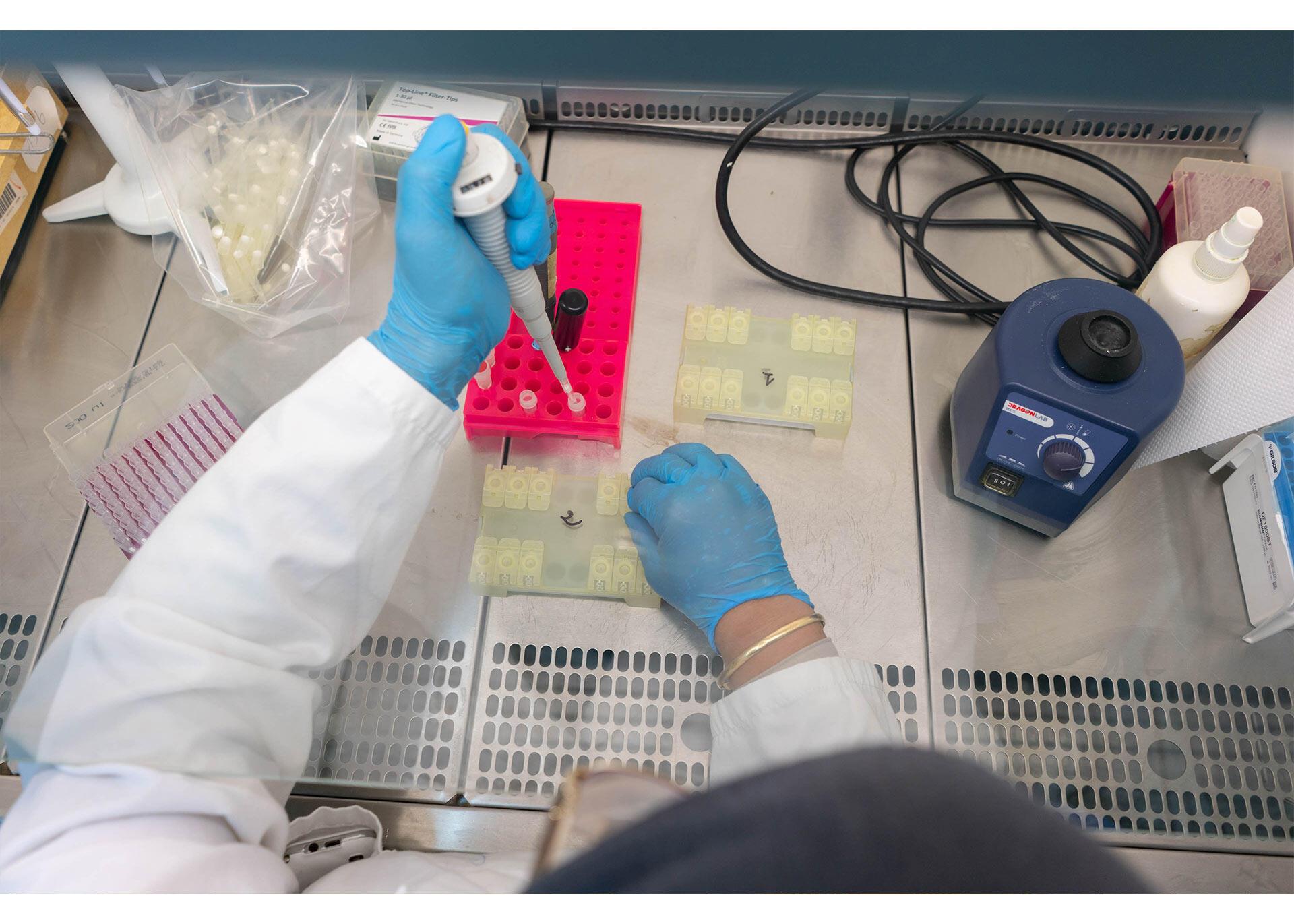 محور دلتا الاسرع انتشارا هل يعيد عقارب الساعة الى الوراء رغم اللقاح ؟
