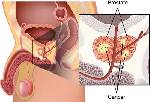 resonancia magnética paramétrica de la próstata