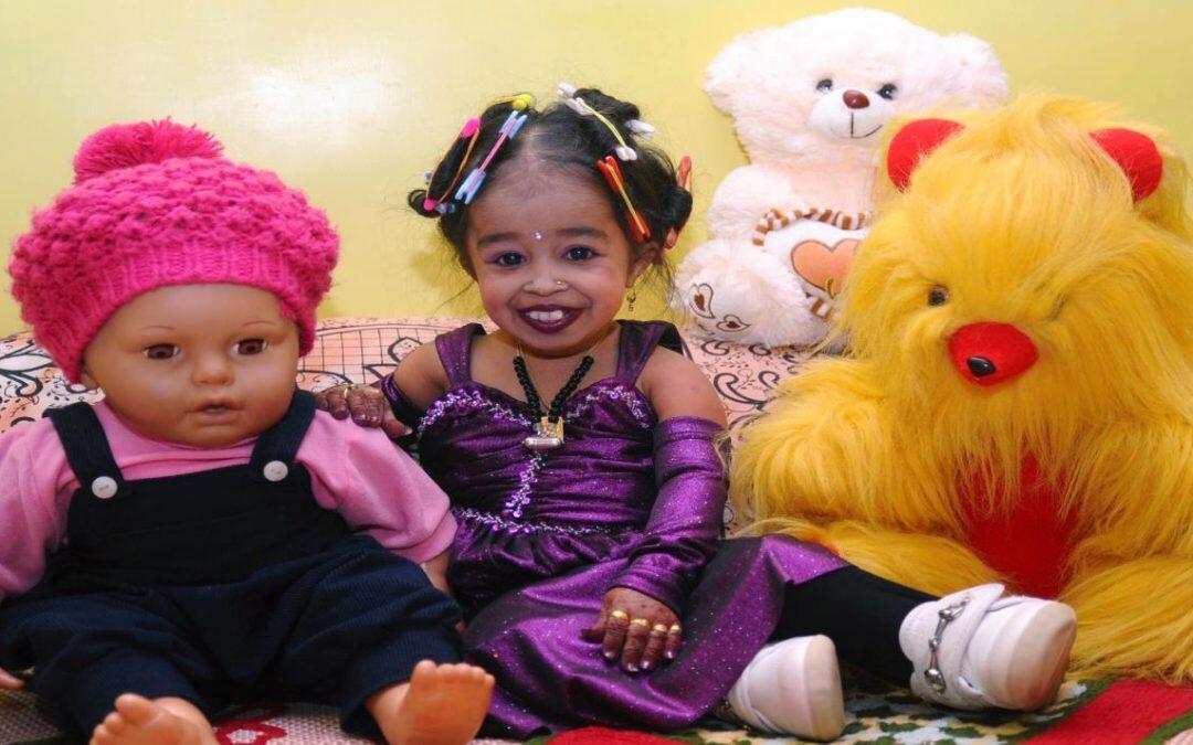 سوء التغذية  والتقزم عند الأطفال  … أزمة صحيّة ومشكلة إقتصادية
