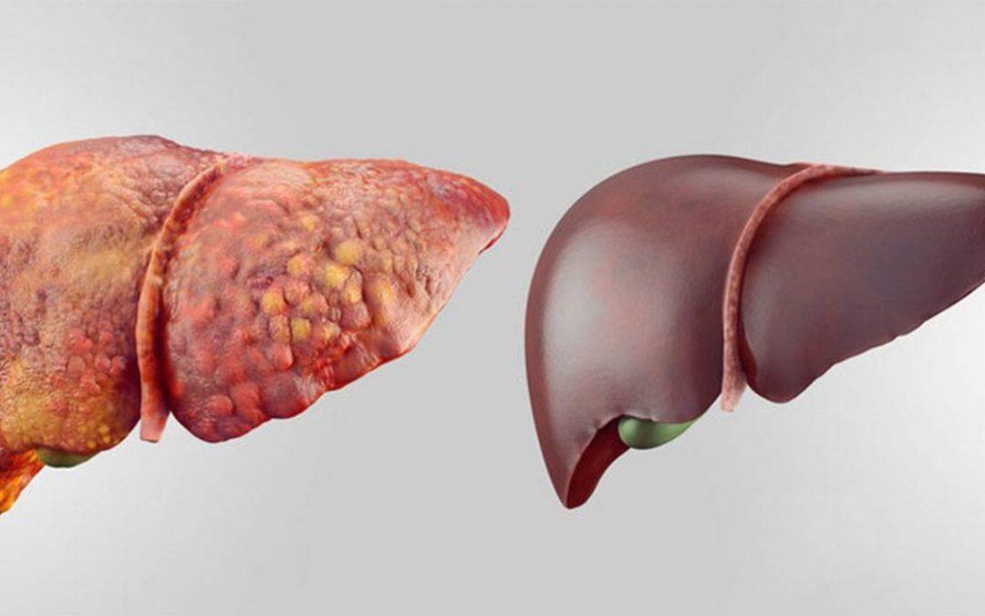 اليوم العالمي للإلتهاب الكبدي : 58.7 مليار دولار أميركي تقضي  عليه في 67 بلد بحلول عام 2030