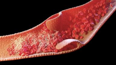"""دراسة تحدد سبب تشكّل جلطات الدم لدى المصابين بـ""""كوفيد-19″ الشديد"""